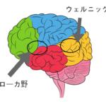 ブローカ失語とウェルニッケ失語の覚え方|違いをわかりやすく説明